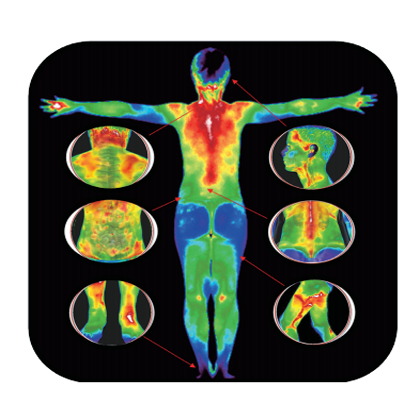 TMT医用红外热像仪热图